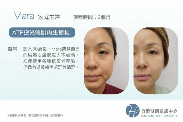 Health SkinATP逆光喚肌再生療程_真實用家見證