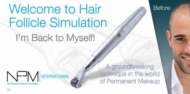 #hairtransplant#hairline#fullerhair#kstyle#bebeautiful#SPMU#Singapore #hairreceding#Hairlinetattoo#Hairlinetattoo#semitattoo#Permanentmakeup#Koreanpermanentmakeup#Koreanpermanenthairline#micropigmentationhairline#3Dhairline#hairlineembroidery #hairlinetattoo#microbladinghairline#hairembroidery#hairlineembroiderysingapore#3dhairline#microbladingforhairline#koreanhairlinemakeup#permanentmakeuphairline#microblading#hairlinemen#hairtattoo#hairtransplant#scalpmicropigmentation#micropigmentation #scalppigmentation #hairpigmentation #hairmicropigmentation #scalptattoo #hishairclinic #smphair #scalpmicropigmentationcost #hairlinetattoo #scalptattoo #hairloss #baldhairtattoo #headtattoosforhairloss #scalphairtattoo #hairtattoocost #hairmicropigmentationcost #microscalp #scalpmicro #scalpmicropigmentationwomen #smphairtreatment #scalpmicropigmentationprice #headtattoos #hairgrowth #baldheadtattoohair #hairpigmentationtreatment #hairlosstattoo #scalppigmentationprices #microhairtattoo #smpscalpmicropigmentation #baldheadtattoo #hairscalppigmentation #hairlinepigmentation #hairtattoomicropigmentation #3dscalp #micropigmentationhairtattoo #mansmptattoo #smphaircost #scarmicropigmentation #smphairtattoo #scalpmicropigmentationbeforeandafter #hairtattoobeforeandafter #scalpmicropigmentationtreatment #hairfollicletattoo #scalppigmentationsideeffects #scalpmicropigmentationforthinninghair #scalpmicropigmentationwithhair #micropigmentationtattoo #3dhairtattoo #hairtattoowomen #smphairloss #hairlinetattoofemale #micropigmentationprice #micropigmentationhairline #smpscalpmicropigmentationmen #menshairtattoosforbaldness #hairtattooprice #hismicropigmentationhair #transplantscartattoo #scalptattooforthinninghair #scalpmicropigmentationscarrepair #scalpmicropigmentationwithhairtransplant #scalptattoohairlosscost #scalppigmentationproblems #scalppigmentationbeforeandafter #femalescalpmicropigmentation #micropigmentationbeforeandafter #scalppigmentationforthinninghair #smphairtransplantscar