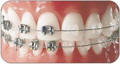 傳統箍牙的圖片搜尋結果